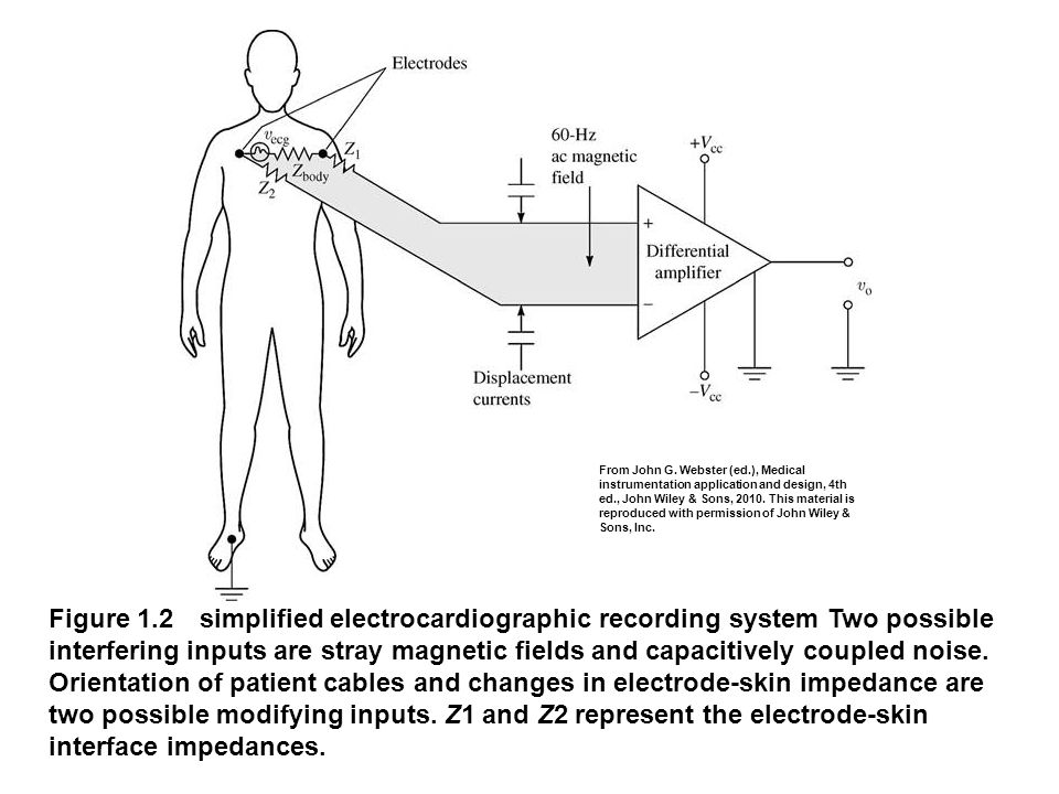 fig_01_02 Figure 1.2 simplified electrocardiographic recording system Two possible interfering inputs are stray magnetic fields and capacitively coupl