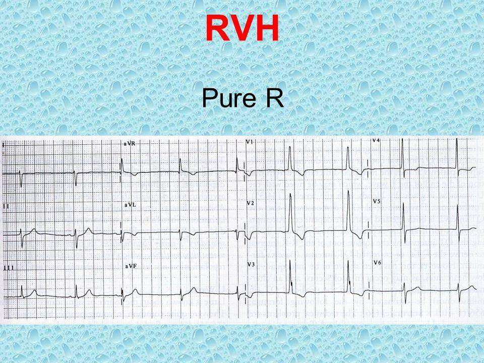 RVH Pure R