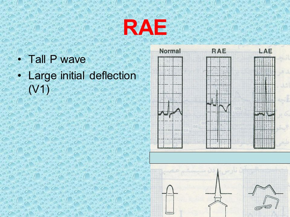 RAE Tall P wave Large initial deflection (V1)