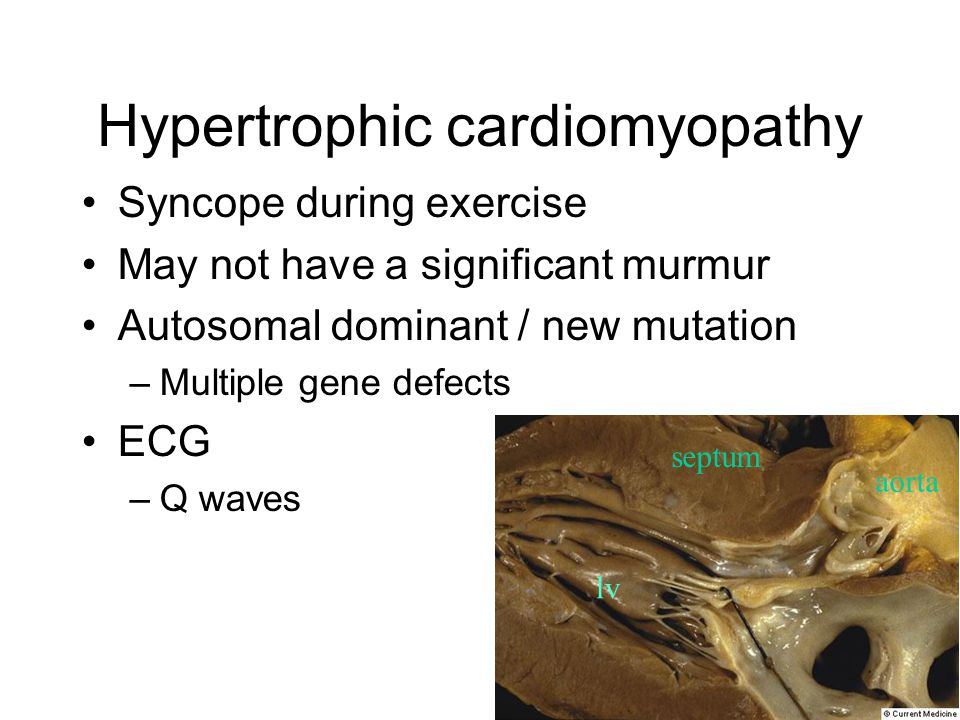 Hypertrophic cardiomyopathy Syncope during exercise May not have a significant murmur Autosomal dominant / new mutation –Multiple gene defects ECG –Q waves septum aorta lv