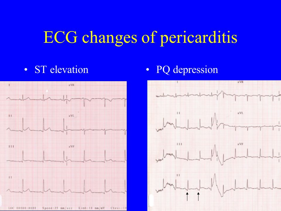ECG changes of pericarditis ST elevationPQ depression