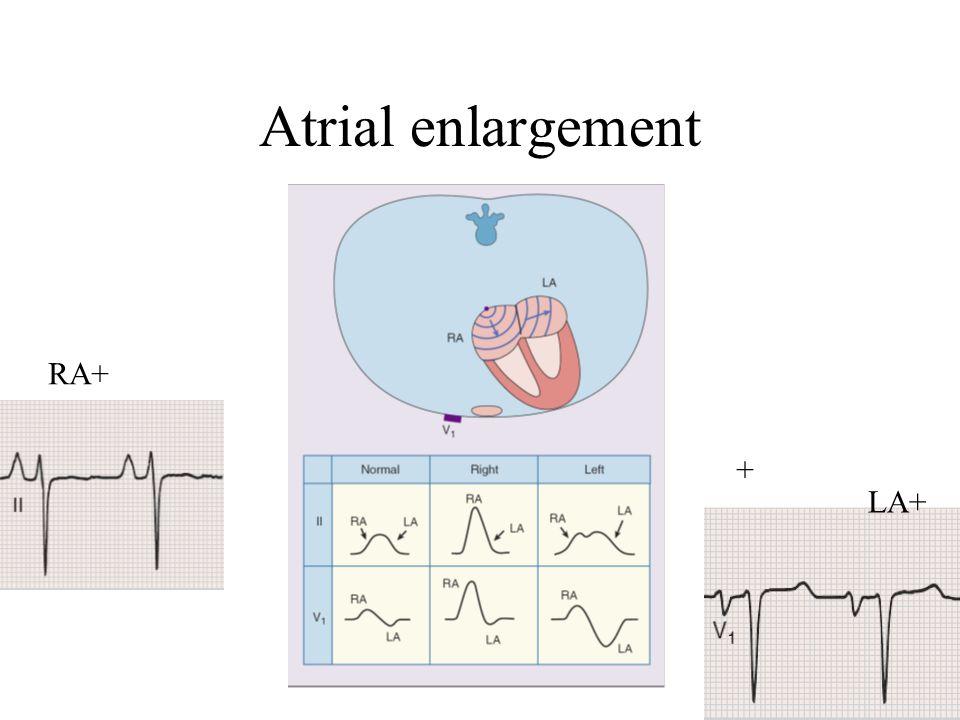 Atrial enlargement RA+ + LA+