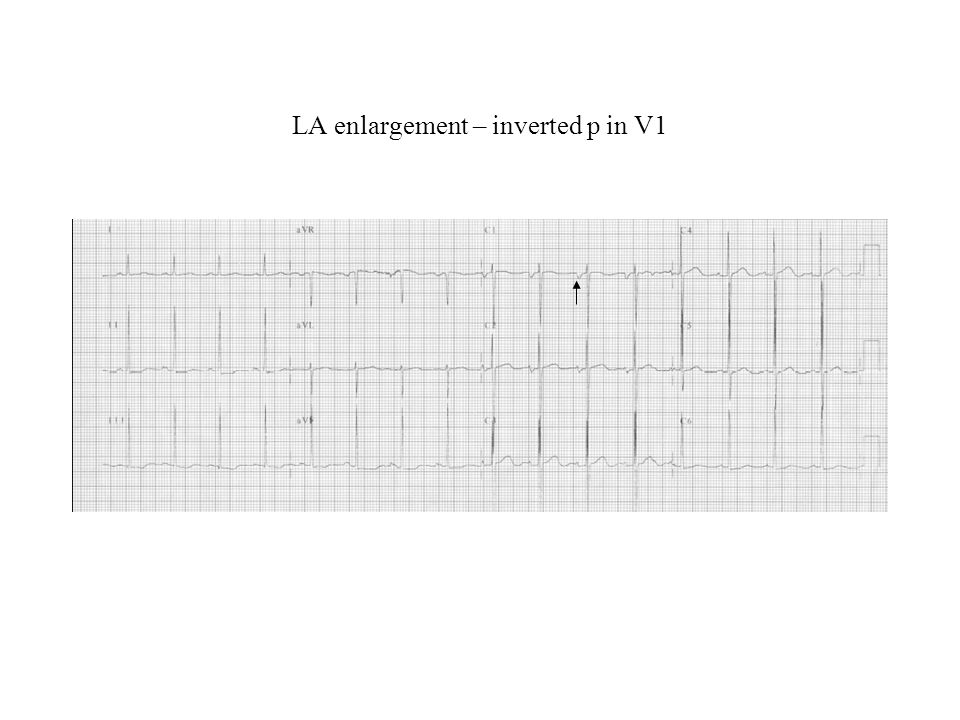 LA enlargement – inverted p in V1