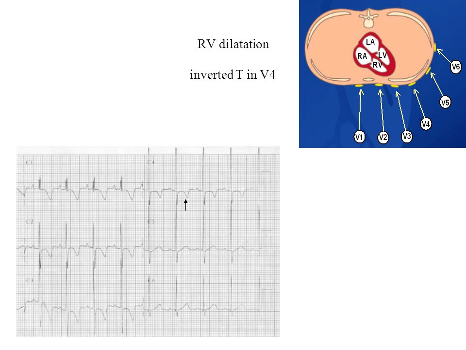 RV dilatation inverted T in V4