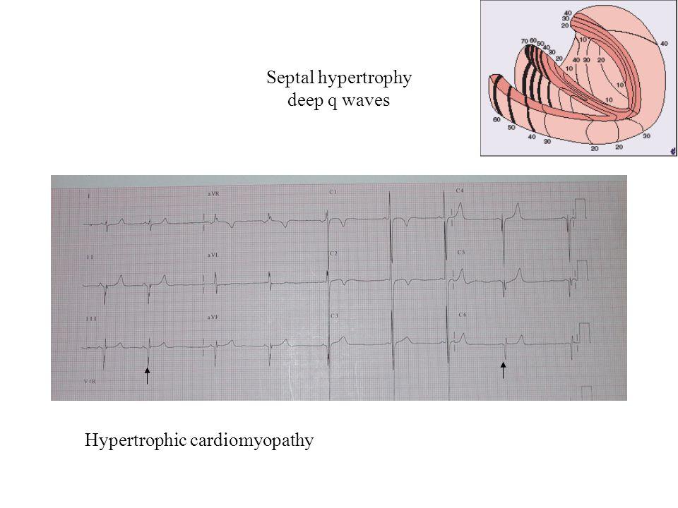 Septal hypertrophy deep q waves Hypertrophic cardiomyopathy