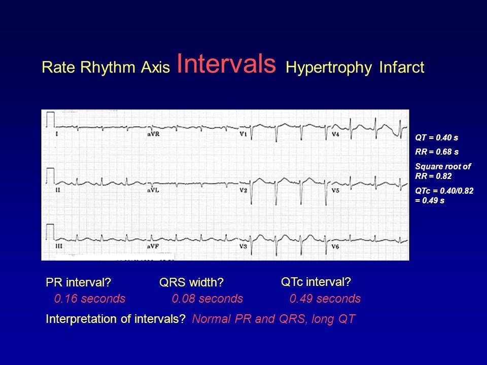 Rate Rhythm Axis Intervals Hypertrophy Infarct PR interval?QRS width? QTc interval? 0.08 seconds0.16 seconds0.49 seconds QT = 0.40 s RR = 0.68 s Squar