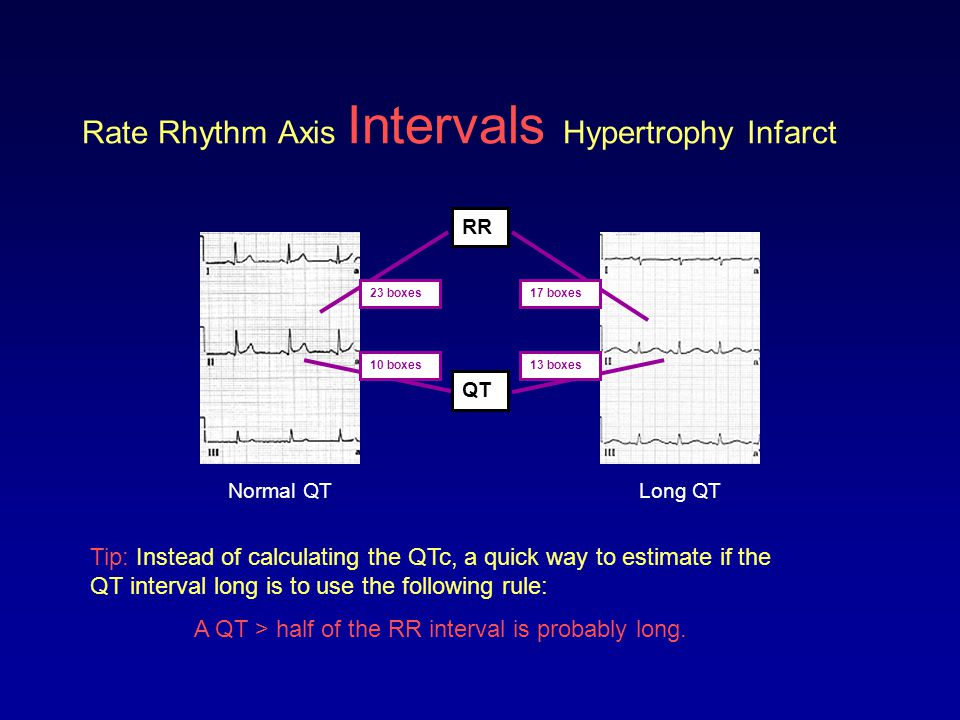 Rate Rhythm Axis Intervals Hypertrophy Infarct Tip: Instead of calculating the QTc, a quick way to estimate if the QT interval long is to use the foll