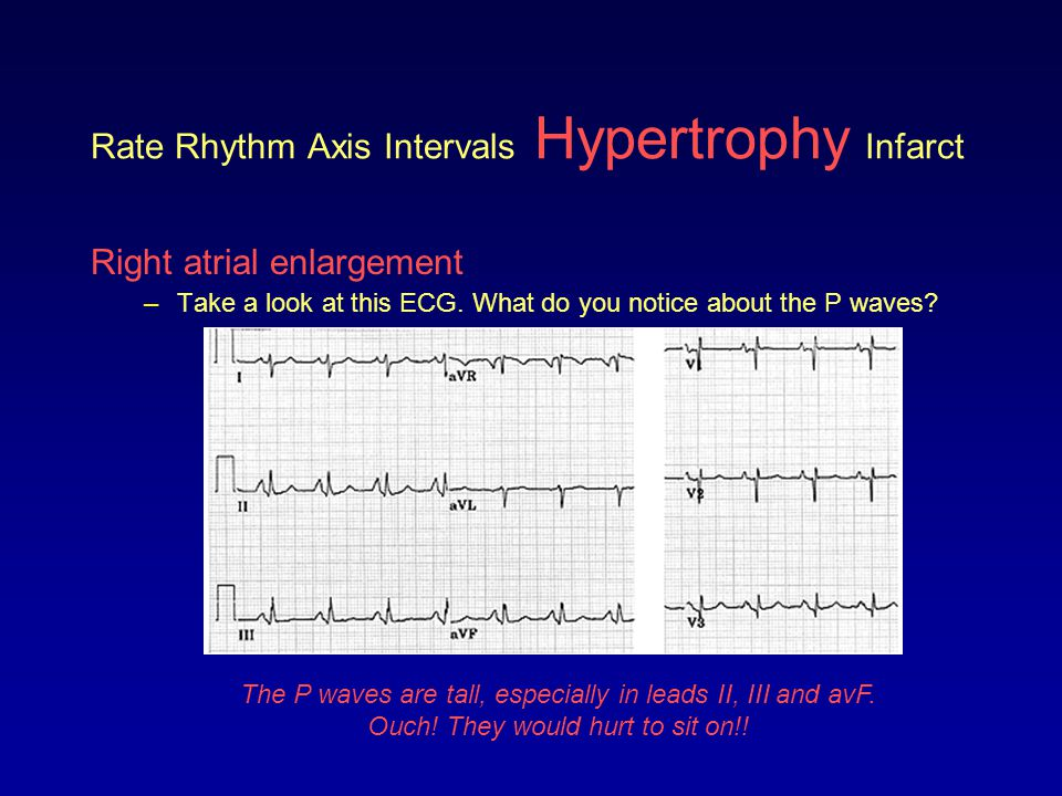 Rate Rhythm Axis Intervals Hypertrophy Infarct Right atrial enlargement –Take a look at this ECG. What do you notice about the P waves? The P waves ar