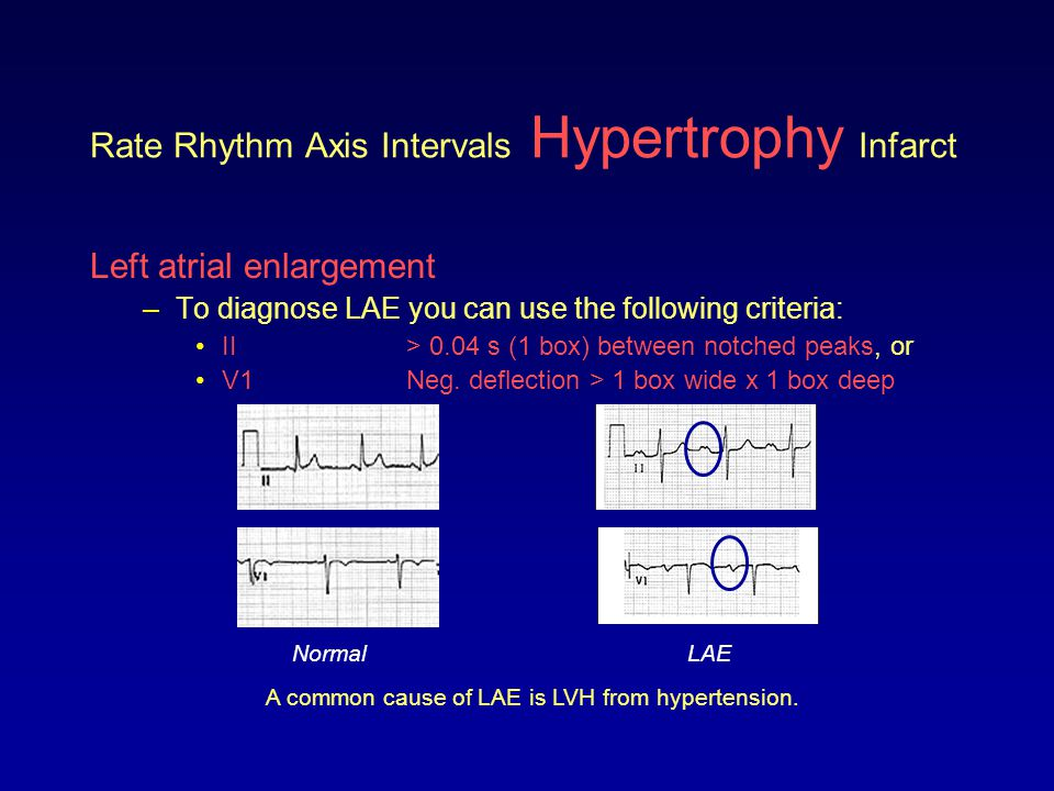 Rate Rhythm Axis Intervals Hypertrophy Infarct Left atrial enlargement –To diagnose LAE you can use the following criteria: II> 0.04 s (1 box) between