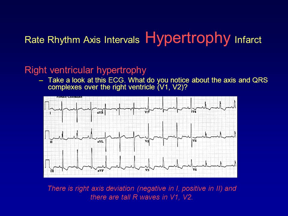 Rate Rhythm Axis Intervals Hypertrophy Infarct Right ventricular hypertrophy –Compare the R waves in V1, V2 from a normal ECG and one from a person with RVH.