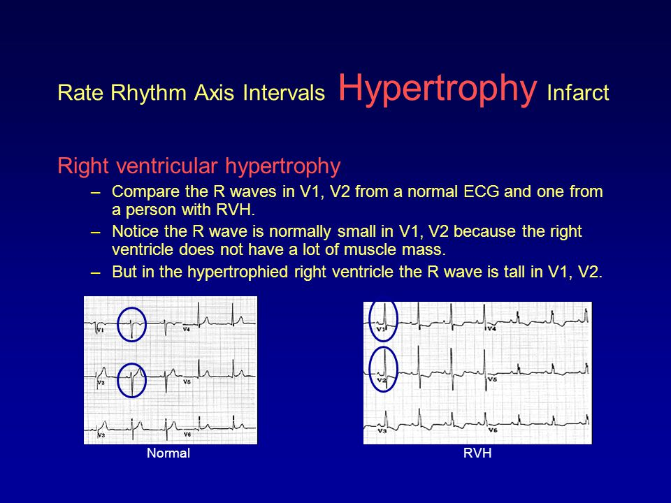 Rate Rhythm Axis Intervals Hypertrophy Infarct Right ventricular hypertrophy –Compare the R waves in V1, V2 from a normal ECG and one from a person wi