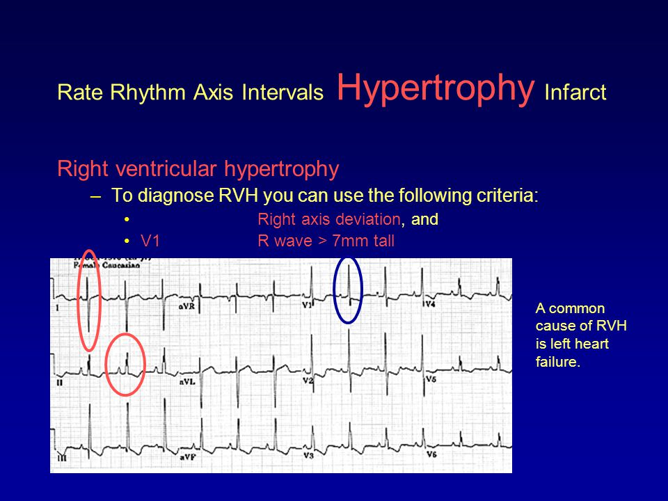 Rate Rhythm Axis Intervals Hypertrophy Infarct Left ventricular hypertrophy –Take a look at this ECG.