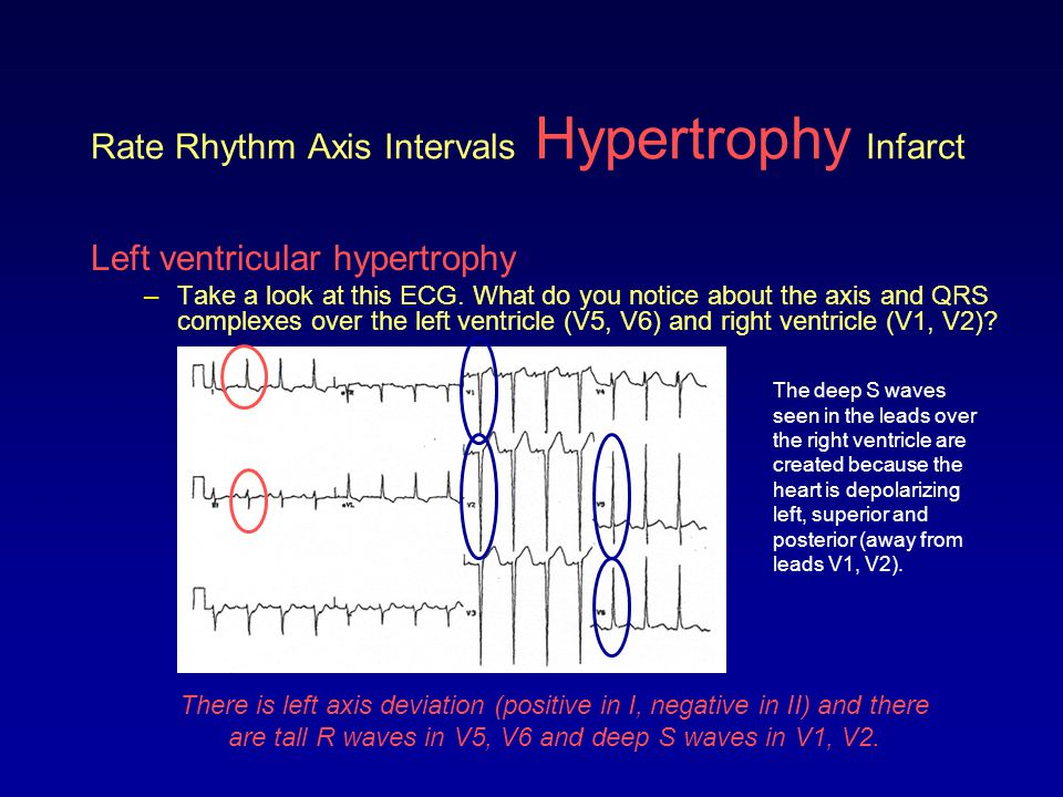 Rate Rhythm Axis Intervals Hypertrophy Infarct Left ventricular hypertrophy –Take a look at this ECG. What do you notice about the axis and QRS comple