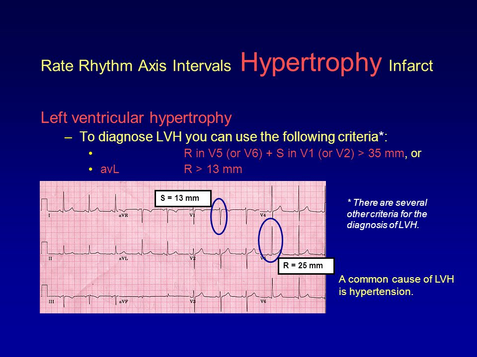 Rate Rhythm Axis Intervals Hypertrophy Infarct Left ventricular hypertrophy –To diagnose LVH you can use the following criteria*: R in V5 (or V6) + S