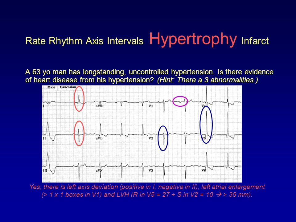 Rate Rhythm Axis Intervals Hypertrophy Infarct When analyzing a 12-lead ECG for evidence of an infarction you want to look for the following: –Abnormal Q waves –ST elevation or depression –Peaked, flat or inverted T waves These topics were covered in Modules V and VI where you learned: –ST elevation (or depression) of 1 mm in 2 or more contiguous leads is consistent with an AMI –There are ST elevation (Q-wave) and non-ST elevation (non-Q wave) MIs