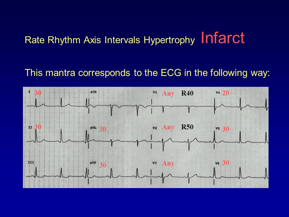 SUMMARY Rate Rhythm Axis Intervals Hypertrophy Infarct To summarize: 1.Calculate RATE 2.Determine RHYTHM 3.Determine QRS AXIS –Normal –Left axis deviation –Right axis deviation –Right superior axis deviation
