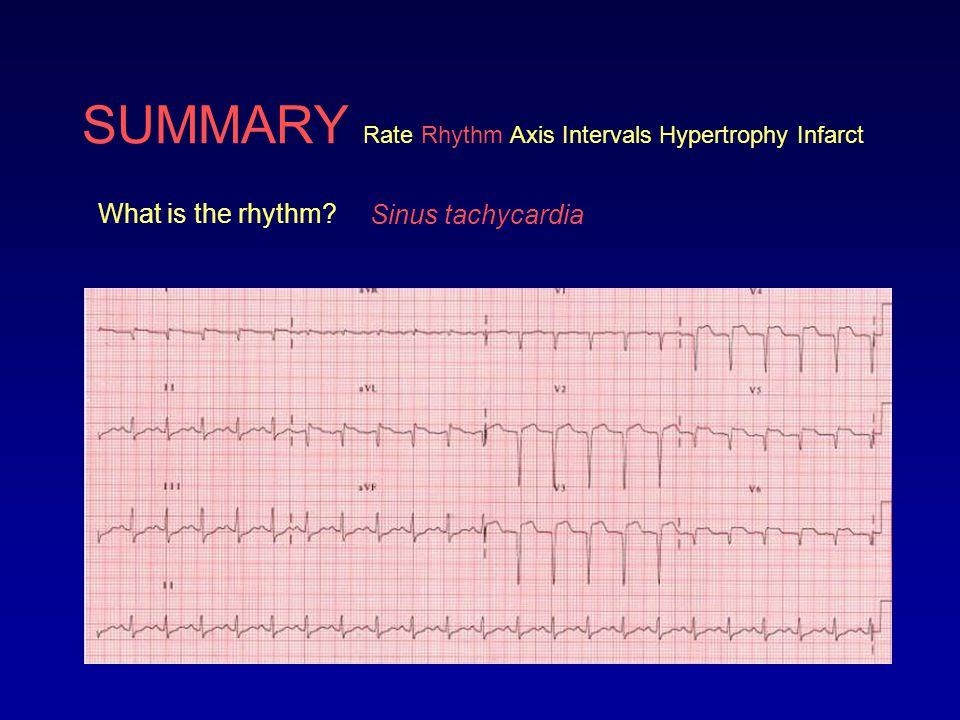 SUMMARY Rate Rhythm Axis Intervals Hypertrophy Infarct What is the rhythm? Sinus tachycardia