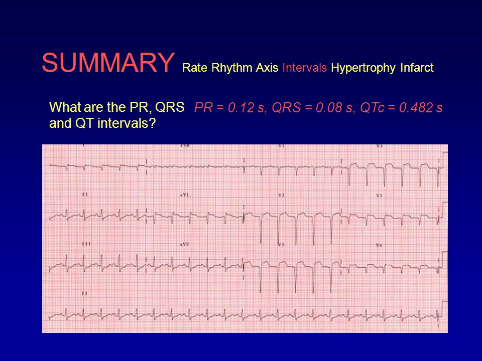 SUMMARY Rate Rhythm Axis Intervals Hypertrophy Infarct What are the PR, QRS and QT intervals? PR = 0.12 s, QRS = 0.08 s, QTc = 0.482 s
