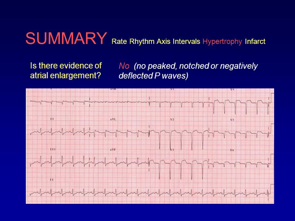SUMMARY Rate Rhythm Axis Intervals Hypertrophy Infarct Is there evidence of ventricular hypertrophy.