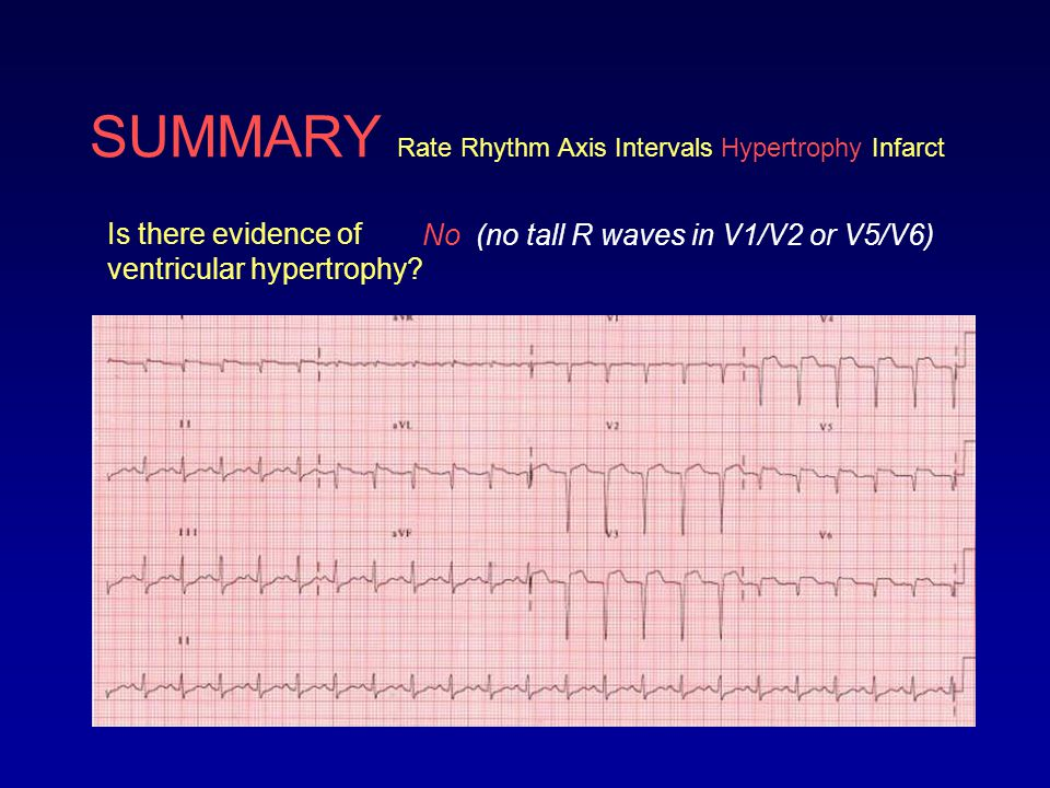 SUMMARY Rate Rhythm Axis Intervals Hypertrophy Infarct Is there evidence of ventricular hypertrophy? No (no tall R waves in V1/V2 or V5/V6)