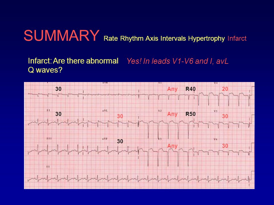 SUMMARY Rate Rhythm Axis Intervals Hypertrophy Infarct Infarct: Are there abnormal Q waves? Yes! In leads V1-V6 and I, avL Any 20 30 R40 R50