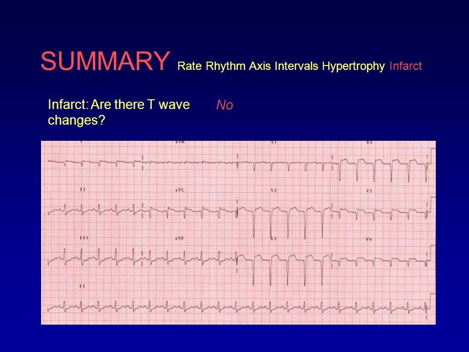 SUMMARY Rate Rhythm Axis Intervals Hypertrophy Infarct ECG analysis: Sinus tachycardia at 132 bpm, right axis deviation, long QT, and evidence of ST elevation infarction in the anterolateral leads (V1-V6, I, avL) with reciprocal changes (the ST depression) in the inferior leads (II, III, avF).