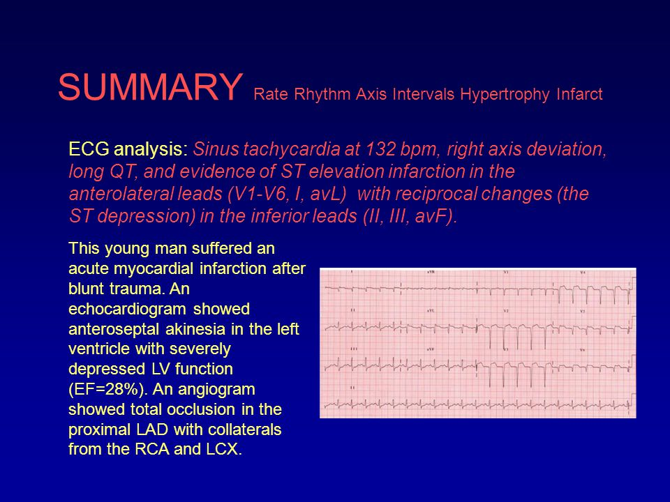 End of Module VII b Reading 12-Lead ECGs Proceed to Module VII b Practice Quiz on your iROCKET Course
