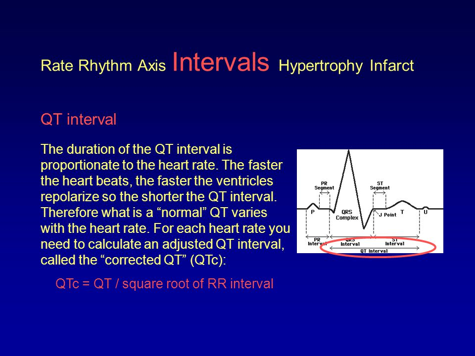 Rate Rhythm Axis Intervals Hypertrophy Infarct QTc interval < 0.44 s> 0.44 s NormalLong QT A prolonged QT can be very dangerous.