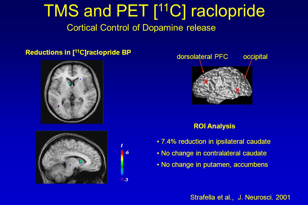 -3 -6 t Reductions in [ 11 C]raclopride BP 7.4% reduction in ipsilateral caudate No change in contralateral caudate No change in putamen, accumbens ROI Analysis Cortical Control of Dopamine release Strafella et al., J.