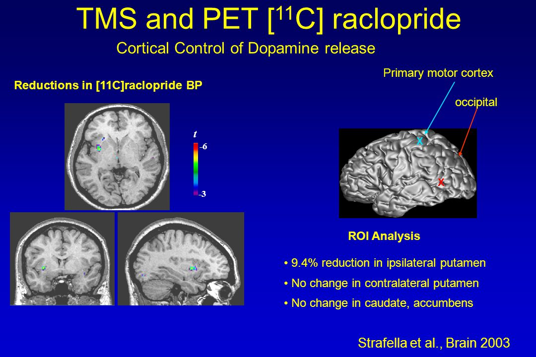 -3 -6 t 9.4% reduction in ipsilateral putamen No change in contralateral putamen No change in caudate, accumbens ROI Analysis Strafella et al., Brain 2003 Reductions in [11C]raclopride BP X occipital X Primary motor cortex TMS and PET [ 11 C] raclopride Cortical Control of Dopamine release