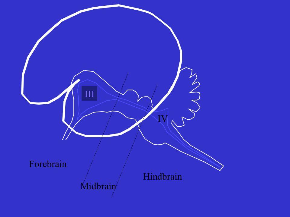 III IV Forebrain Midbrain Hindbrain
