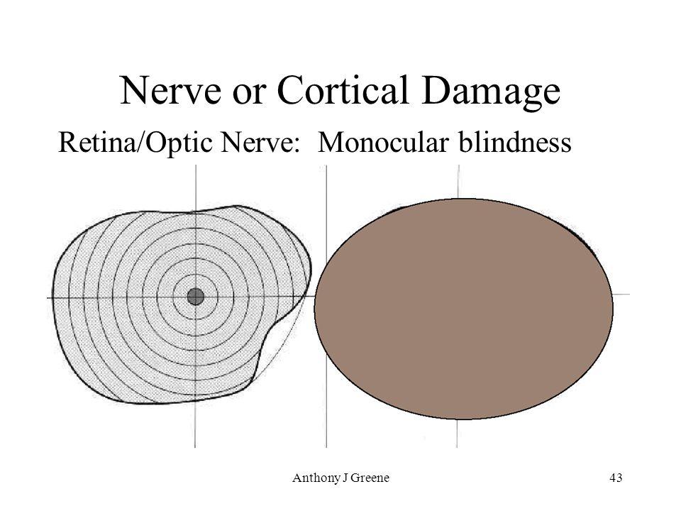 Anthony J Greene43 Nerve or Cortical Damage Retina/Optic Nerve: Monocular blindness