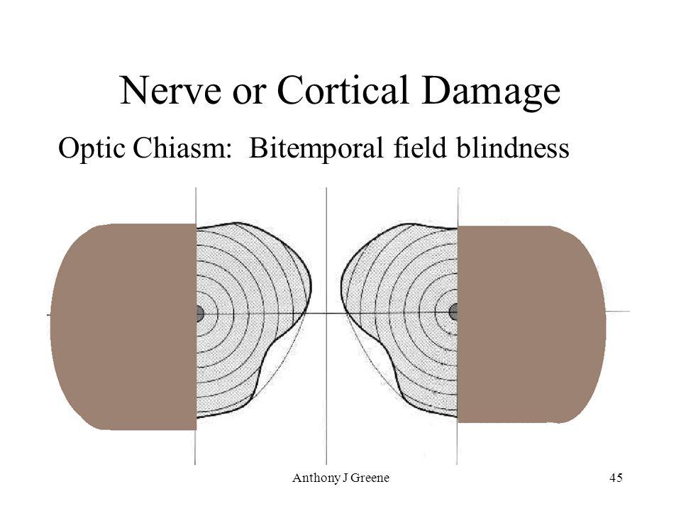 Anthony J Greene45 Nerve or Cortical Damage Optic Chiasm: Bitemporal field blindness