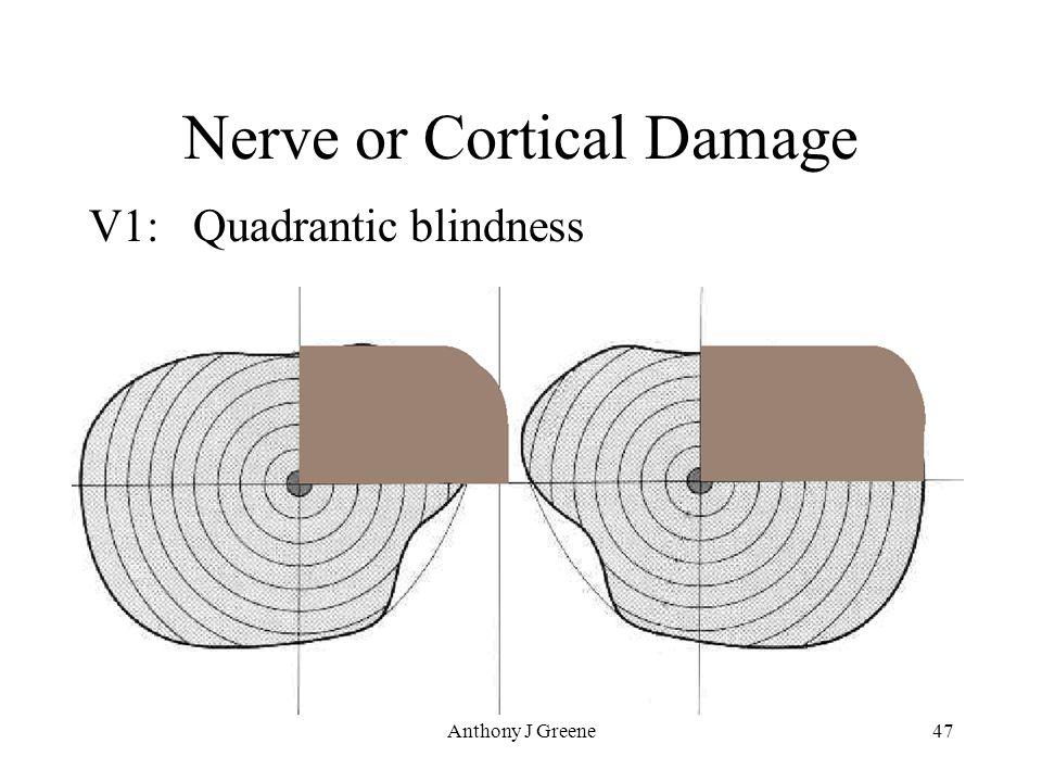 Anthony J Greene47 Nerve or Cortical Damage V1: Quadrantic blindness
