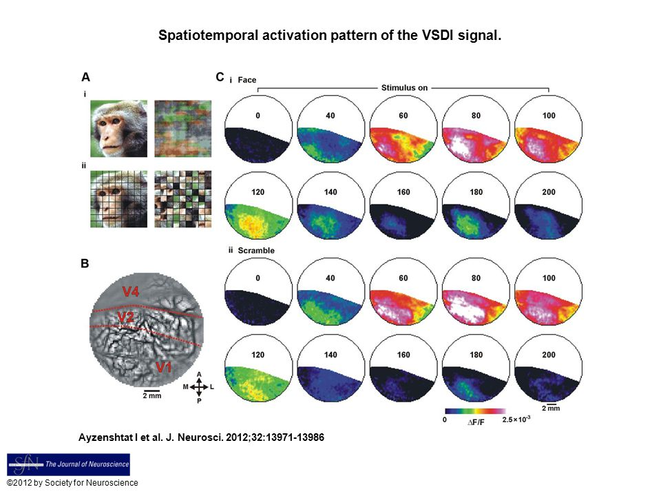 Spatiotemporal activation pattern of the VSDI signal.