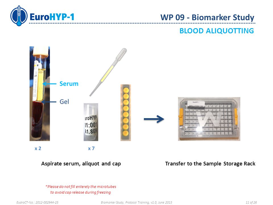 WP 09 - Biomarker Study BLOOD ALIQUOTTING Aspirate serum, aliquot and cap *Please do not fill enterely the microtubes to avoid cap release during freezing Transfer to the Sample Storage Rack EudraCT-No.: 2012-002944-25Biomarker Study, Protocol Training, v1.0, June 201311 of 26