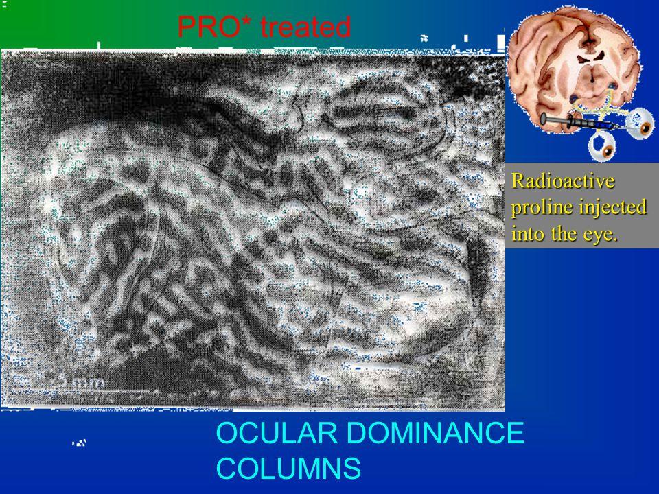 V1 (primary visual cortex): ocular dominance columns ocular dominance columns