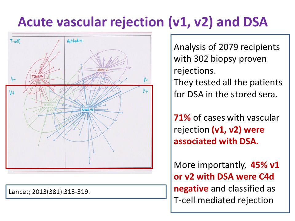 Acute vascular rejection (v1, v2) and DSA Analysis of 2079 recipients with 302 biopsy proven rejections.