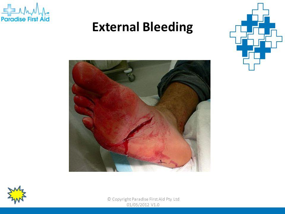 © Copyright Paradise First Aid Pty Ltd 01/05/2012 V1.0 External Bleeding