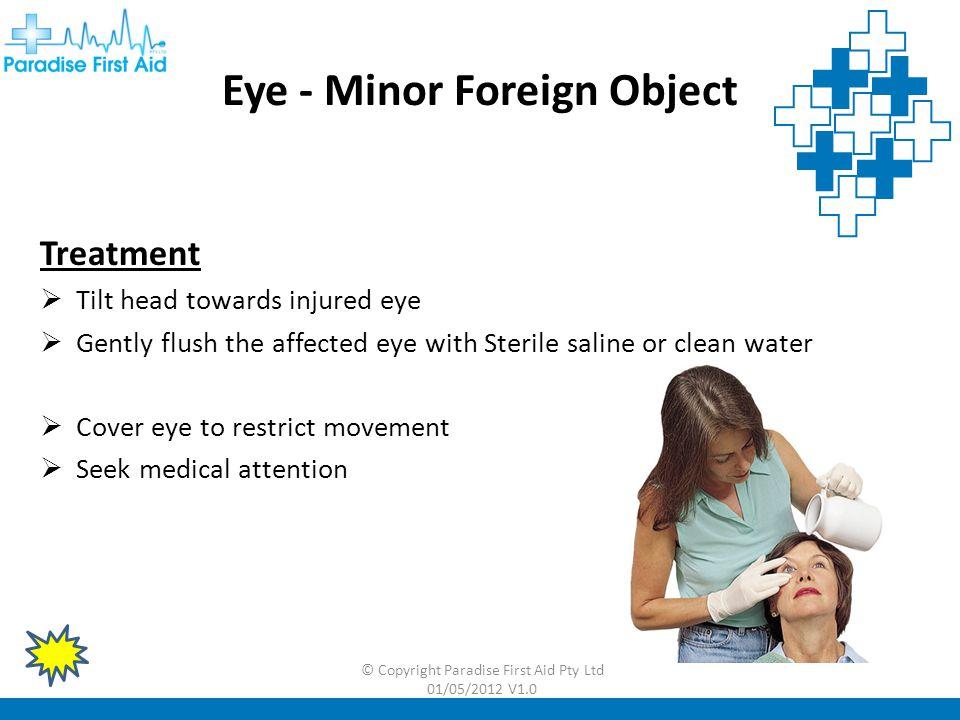 © Copyright Paradise First Aid Pty Ltd 01/05/2012 V1.0 Eye – Major Embedded Object