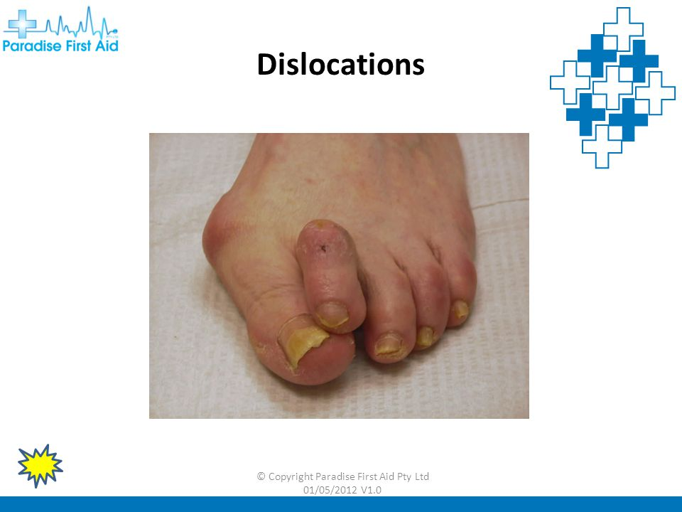 © Copyright Paradise First Aid Pty Ltd 01/05/2012 V1.0 Dislocations