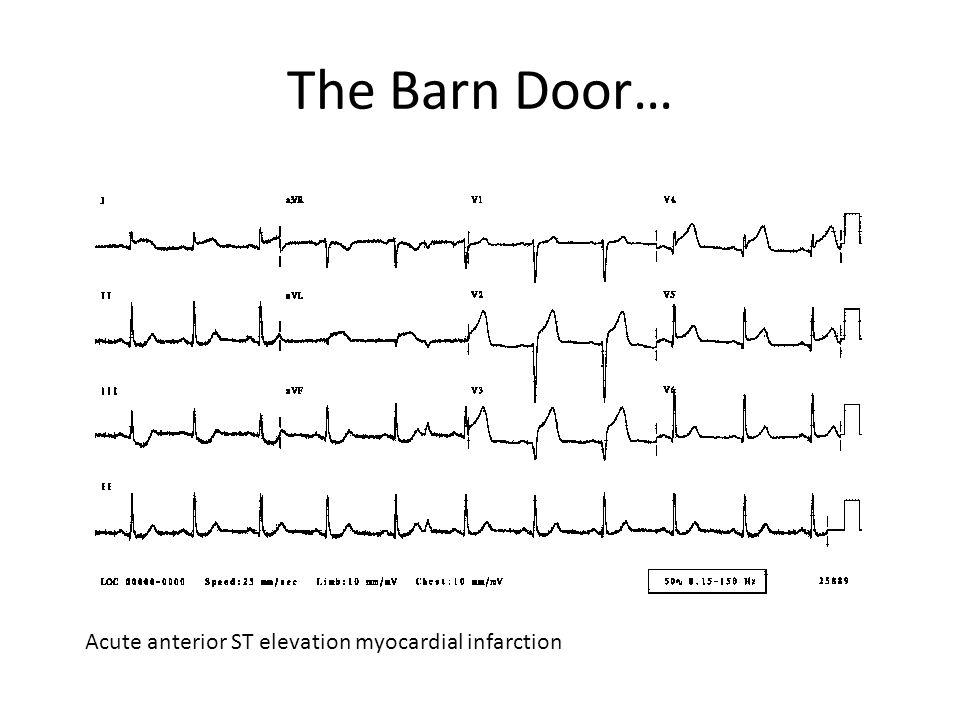 The Barn Door… Acute anterior ST elevation myocardial infarction