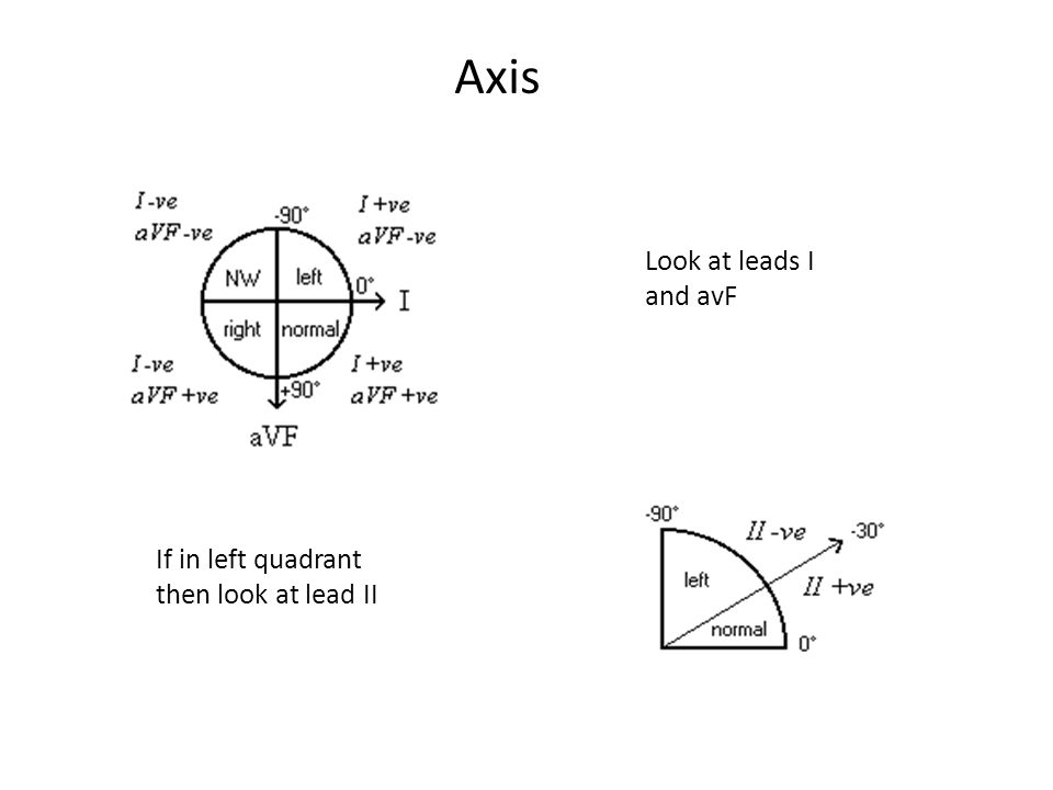 Look at leads I and avF If in left quadrant then look at lead II Axis