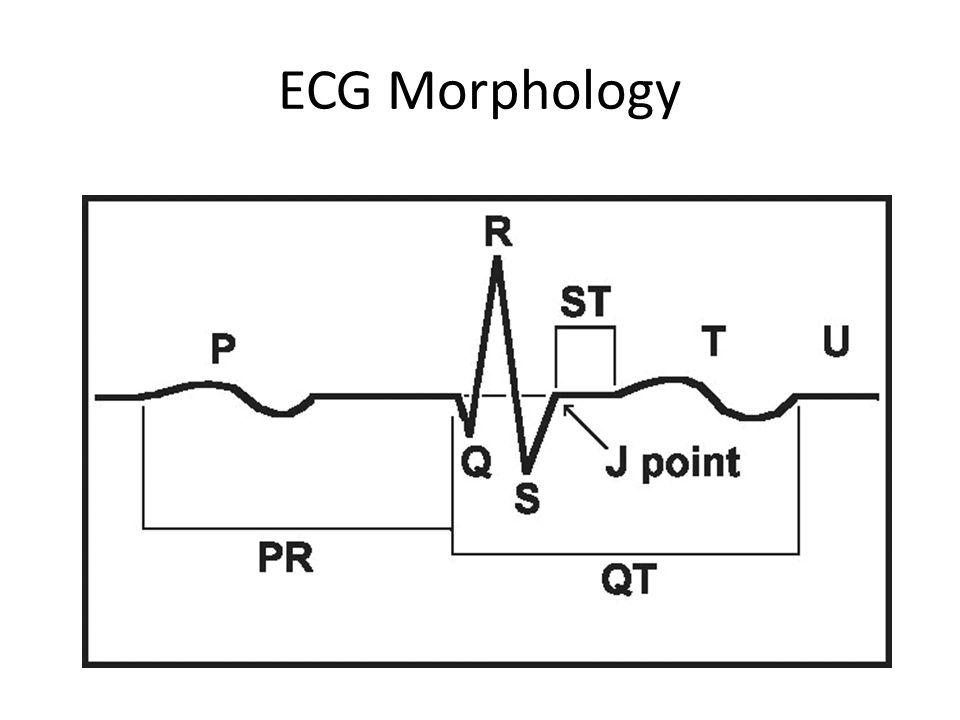 ECG Morphology