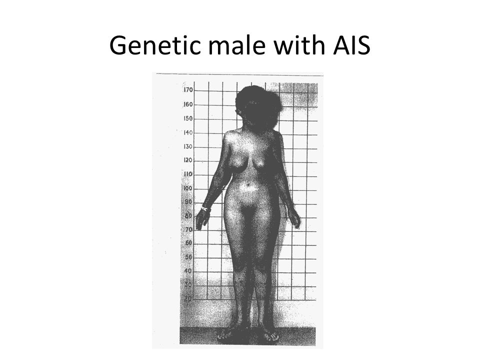 Genetic male with AIS