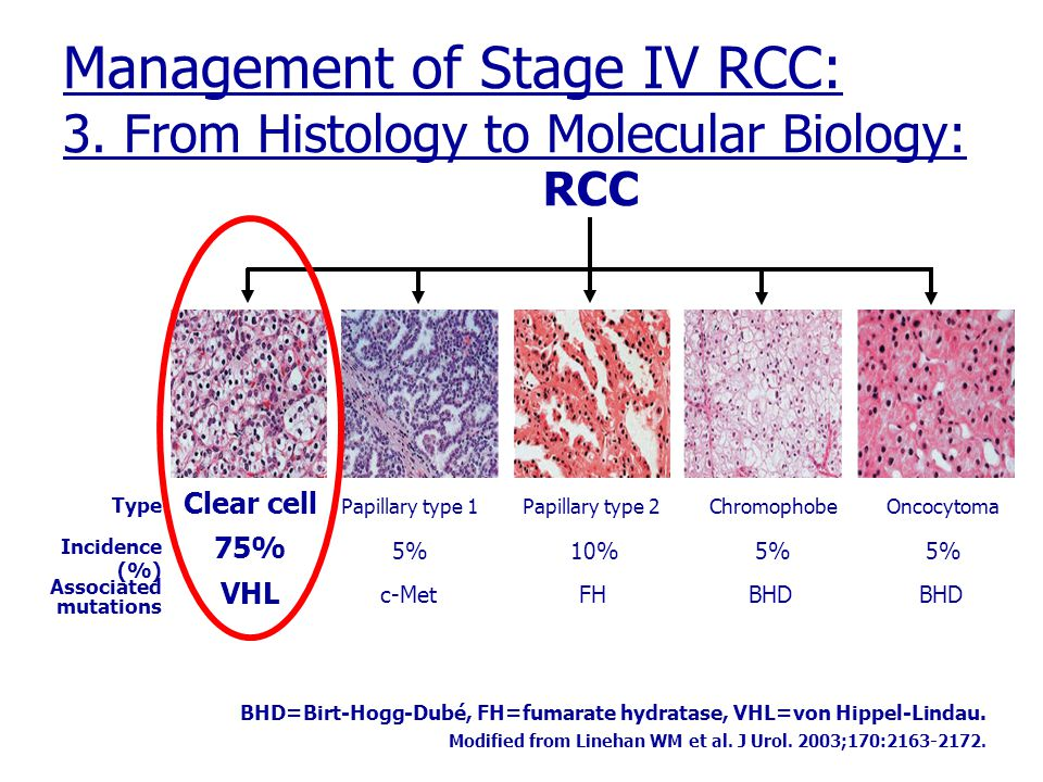 Management of Stage IV RCC: 3. From Histology to Molecular Biology: BHD=Birt-Hogg-Dubé, FH=fumarate hydratase, VHL=von Hippel-Lindau. Modified from Li