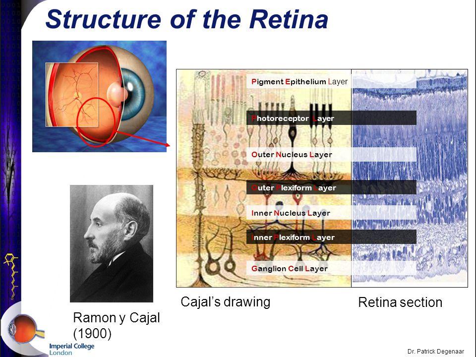 Dr. Patrick Degenaar Glaucoma Lens Anterior chamber Cornea Trabecular meshwork Iris Schlemm's canal