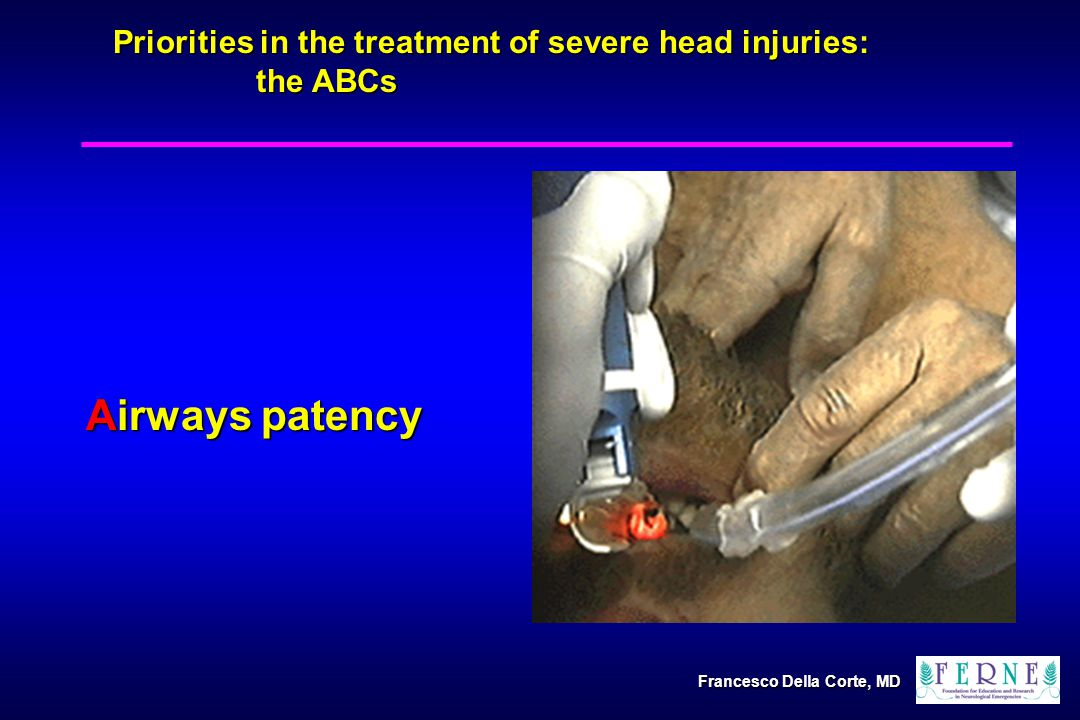 Airways patency Priorities in the treatment of severe head injuries: the ABCs Francesco Della Corte, MD