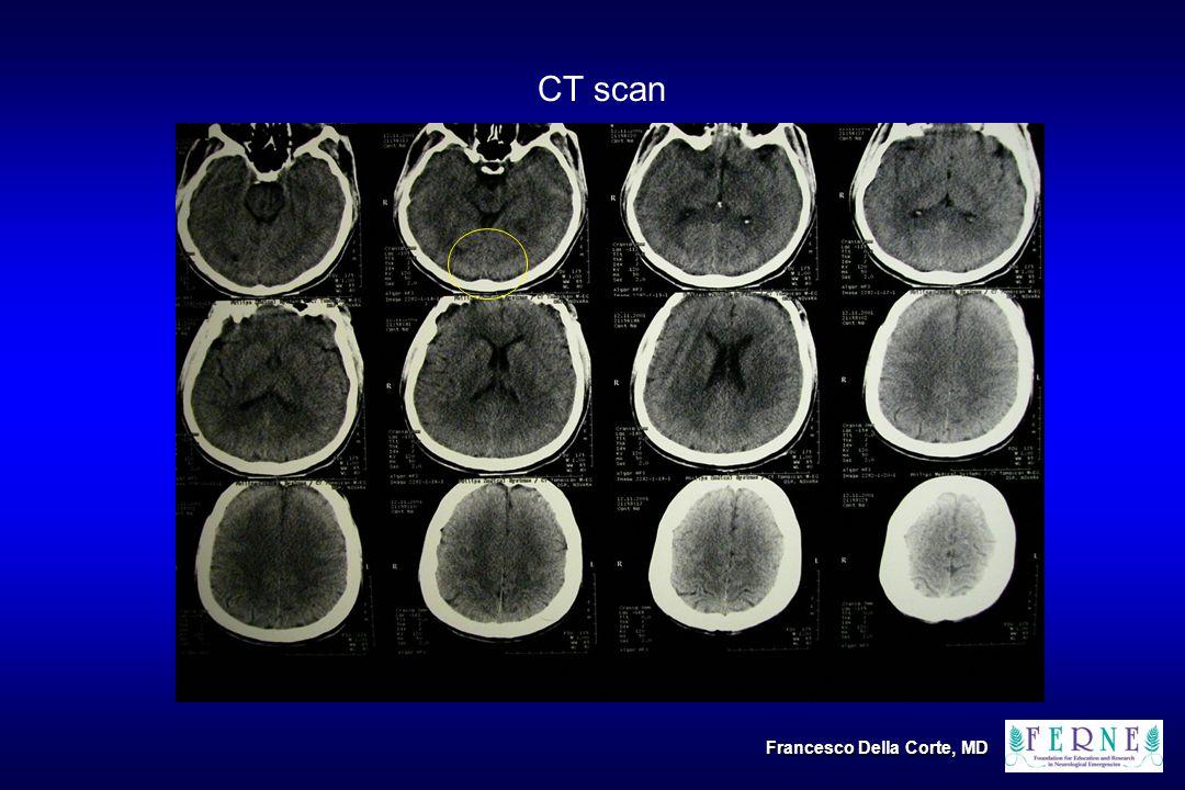 CT scan Francesco Della Corte, MD