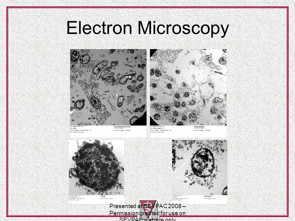 Electron Microscopy Presented at SEVPAC 2008 – Permission granted for use on SEVPAC website only